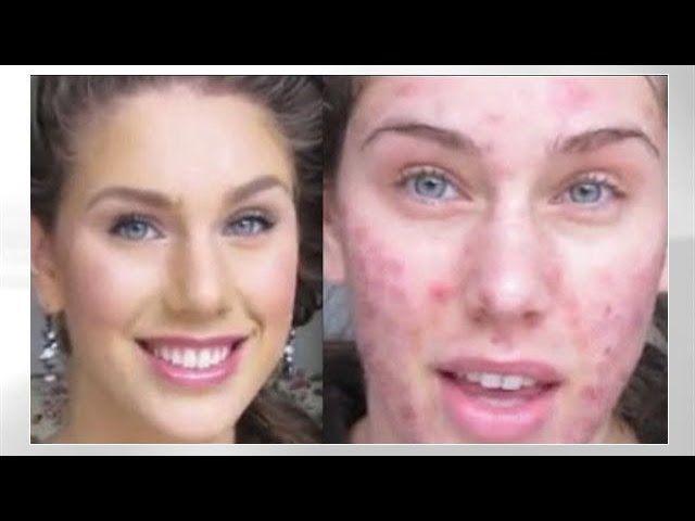 COMO ELIMINAR EL ACNE Y SUS MARCAS. RAPIDO Y DEFINITIVAMENTE. MI EXPERIENCIA.. Read the rest of this entry » http://acnereview.biz/como-eliminar-el-acne-y-sus-marcas-rapido-y-definitivamente-mi-experiencia/