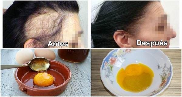 Esta receta mágica podrá ayudarte a combatir la caída del cabello