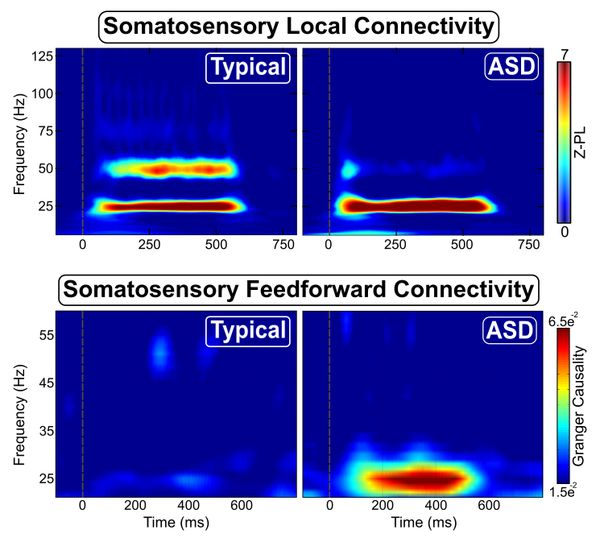"Autistic people's somatosensory cortex could be considered both ""overconnected"" and ""underconnected"" compared to neurotypical brains. Autistic somatosensory neurons connect less with each other than NTs' and more with other brain regions. Pin now, read later."
