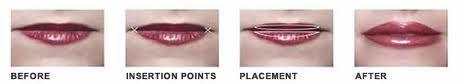 Lip implant placement