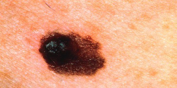 Melanoma of the skin.