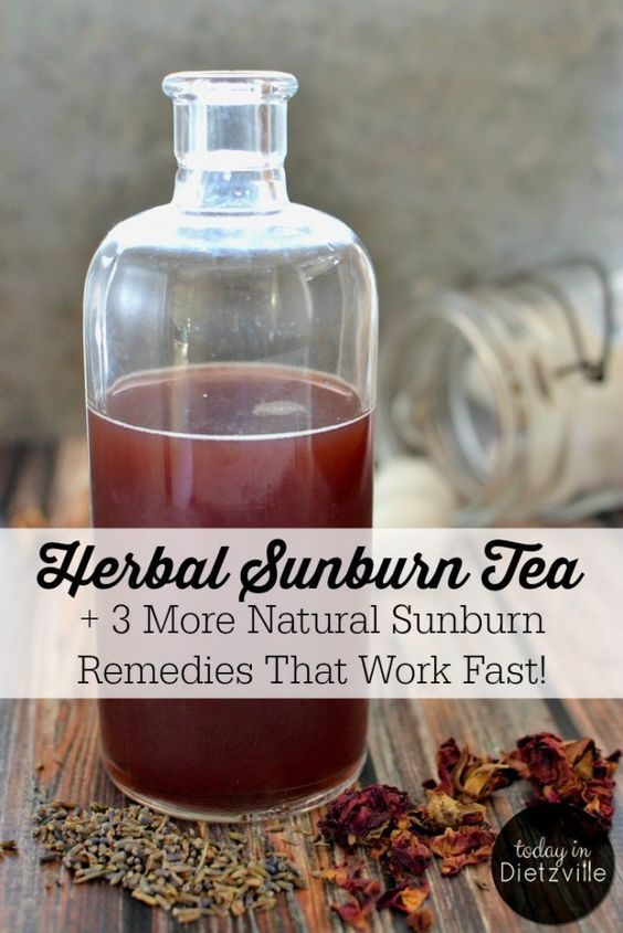 Herbal Sunburn Tea | This Herbal Sunburn Tea works quickly to relieve the pain and heat of a sunburn. Although my son had a really bad sunburn, he never peeled or itched! His skin healed completely, and he never complained of pain or stiffness in his skin! And there are 3 more natural sunburn remedies that work fast! | TodayInDietzville.com
