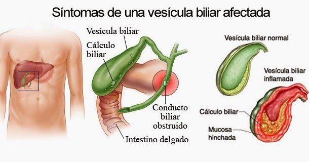 ¿Qué es la vesícula biliar? La vesícula biliar es un órgano con forma de pera ubicado debajo del hígado. Almacena bilis, un líquido producido por el hígado para digerir las grasas. Síntomas de la vesícula biliar afectada Cuando el estómago y el intestino digieren los alimentos, la vesícula biliar libera bilis a través de un tubo denominado conducto biliar común. Ese conducto conecta a la vesícula biliar y el hígado con el intestino delgado.
