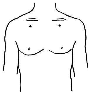 Точка, помогающая уменьшить избыточный вес, возникший как следствие  психологической травмы или шока