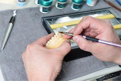 Protetyka jest działem stomatologii zajmującym się odtwarzaniem pierwotnych warunków zgryzowych po utracie zębów własnych lub po ich masywnym uszkodzeniu. Do uzupełnienia braków stosuje się uzupełnienia protetyczne stałe – niewyjmowane z ust, ruchome – dające się wyjąć z ust, oraz prace kombinowane, czyli protezy ruchome połączone z uzupełnieniami stałymi za pomocą specjalnych łączników.
