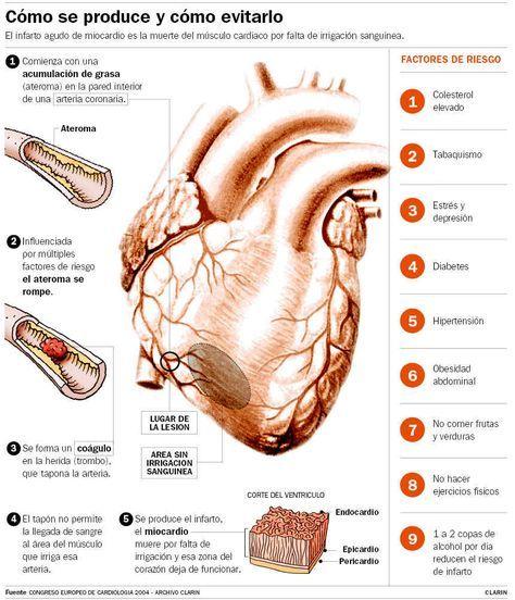 Se define infarto agudo de miocardio (IAM) como: ©  Hallazgo en la anatomía patológica de áreas de necrosis cardíaca. ©  Elevación...