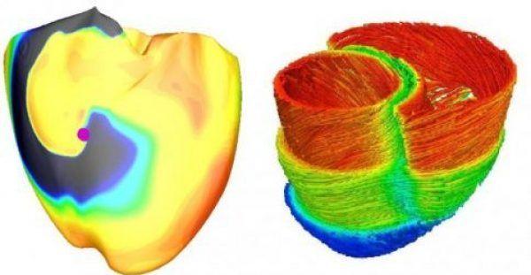 Εικονική καρδιά προβλέπει τον κίνδυνο θανάτου από αρρυθμία