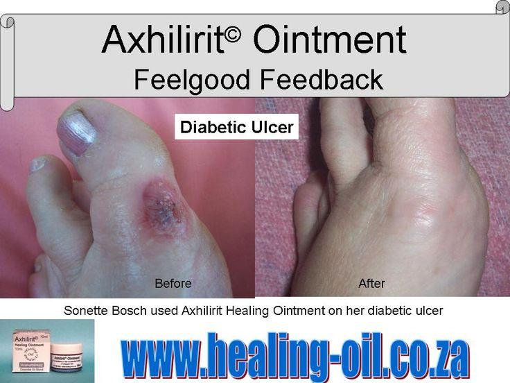 Axhilirit feedback from Sonette Bosch. www.healing-oil.co.za