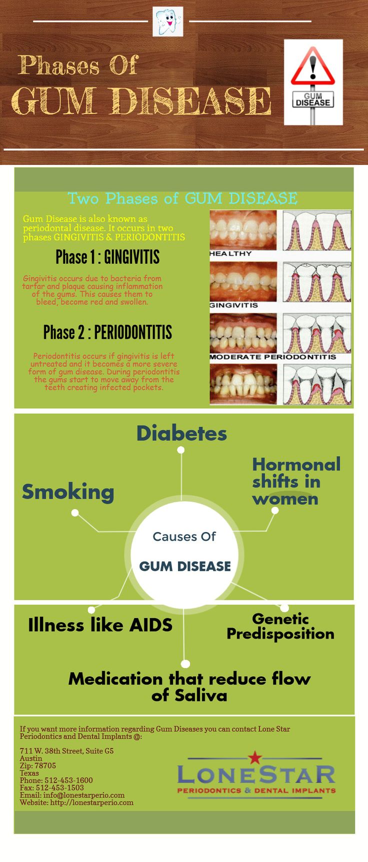 Use this infographic to get useful information about gum disease, its phases and also the main causes of gum disease.