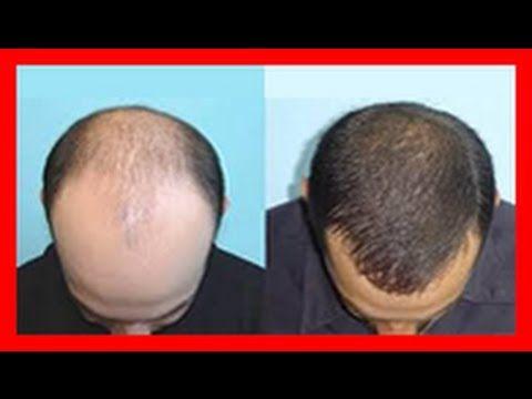 Receita para queda de cabelo - faça seu cabelo crescer com estes ingredientes - YouTube