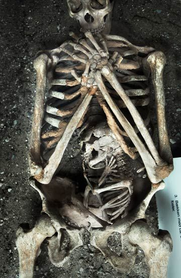 Skeleton of a woman and foetus, who both died during the mothers pregnancy