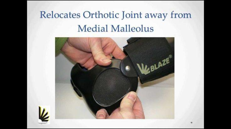 Post Tib Brace solution for Posterior Tibial Tendon