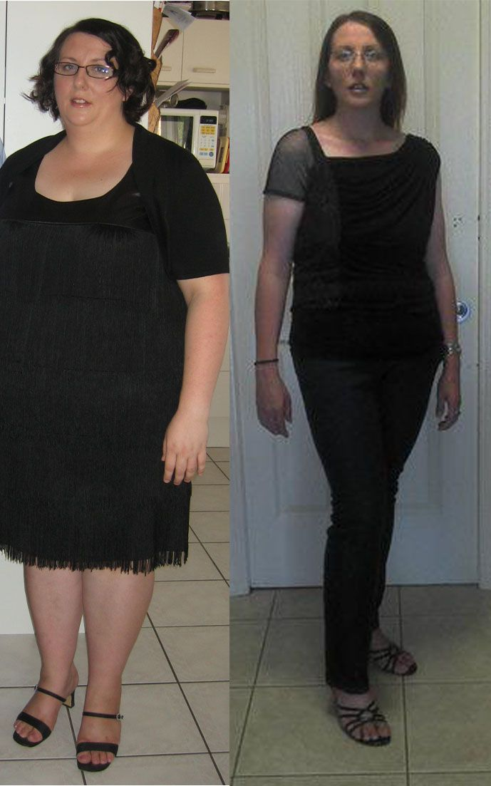 Before And After Diy Kitchen Renovation: Gastric Sleeve Surgery Before And After Jenny: Before
