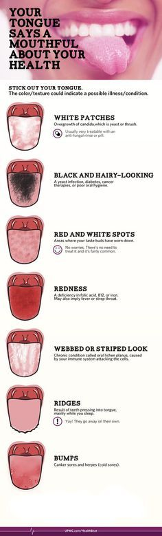 Follow Take a look in the mirror - The color and texture of your tongue can tell a lot about your overall health. Check out our infographic for…