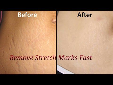 Remove Stretch Marks Fast at home - YouTube