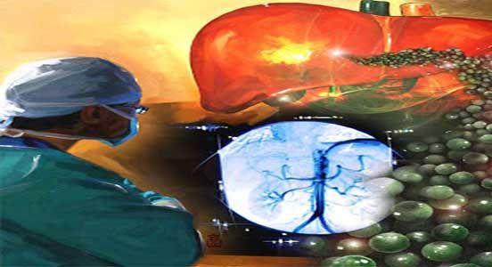 Sedm přírodních léčeb rakoviny znemožněných úřady
