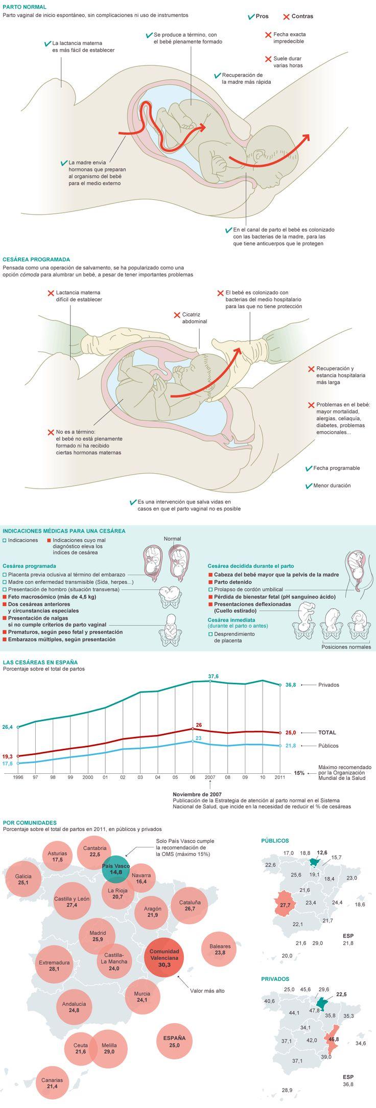 Diferencia entre parto vaginal y cesárea, indicaciones para cesárea, y situación en España...