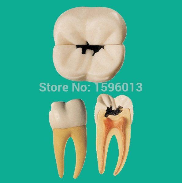 (118.00$)  Watch here  - Dental Caries Model, decayed teeth model