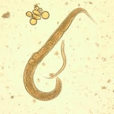 Strongyloides stercoralis- human parasitic roundworm causes the disease strongyloidiasis