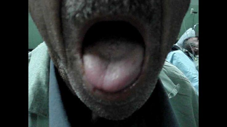 Right hypoglossal nerve palsy. Osama SM Amin FACP