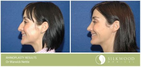 BEFORE AND AFTER by Dr Warwick Nettle: Open rhinoplasty to correct dorsal hump and turn up the tip slightly. You can read Dr Nettle's latest article in Cosmetic Surgery and Beauty Magazine on reshaping the nose here: http://www.silkwoodmedical.com.au/wp-content/uploads/2013/02/CSBM_59_NettleNose.pdf
