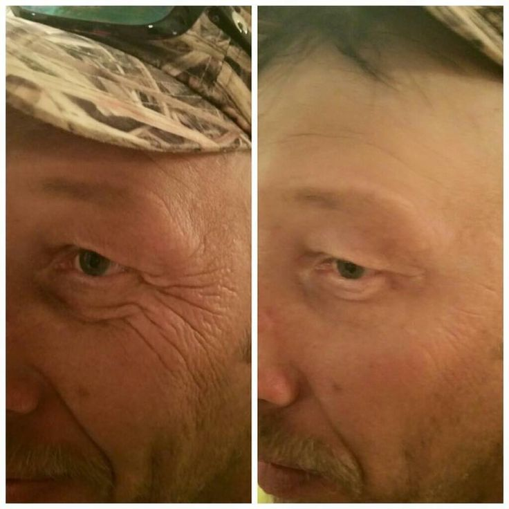 Even manly men use Instantly Ageless!