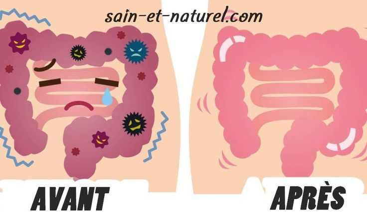 Les déchets de votre côlon : Faire un nettoyage du côlon est une bonne façon d'éliminer les toxines de votre corps et de restaurer votre système digestif