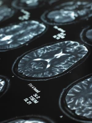 Physiotherapeutic Exercises for Cerebellar Ataxia