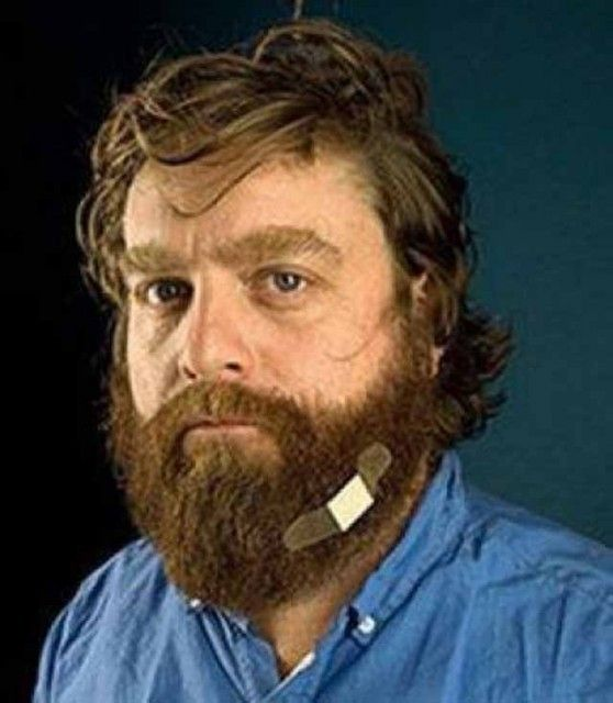 Zach Galifianakis - his beard hurts.