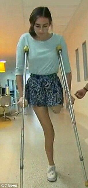 Nice ass on crutches, nude sexually intercourse