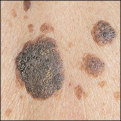 #Ayurvedic #Treatment for #Seborrheic #keratosis & #Skin #tags - #Symptoms, #Causes & #Herbal #Remedies   Seborrheic keratosis is one of the most common non-cancerous #growth most commonly seen in older #adults. A seborrheic keratosis usually appears as a brown, black or light tan growth on #face, #chest, #back or #shoulders. The growth has a waxy, scaly and slightly elevated appearance. It must be noted that seborrheic keratosis doesn't become cancerous in the later stage and are not…