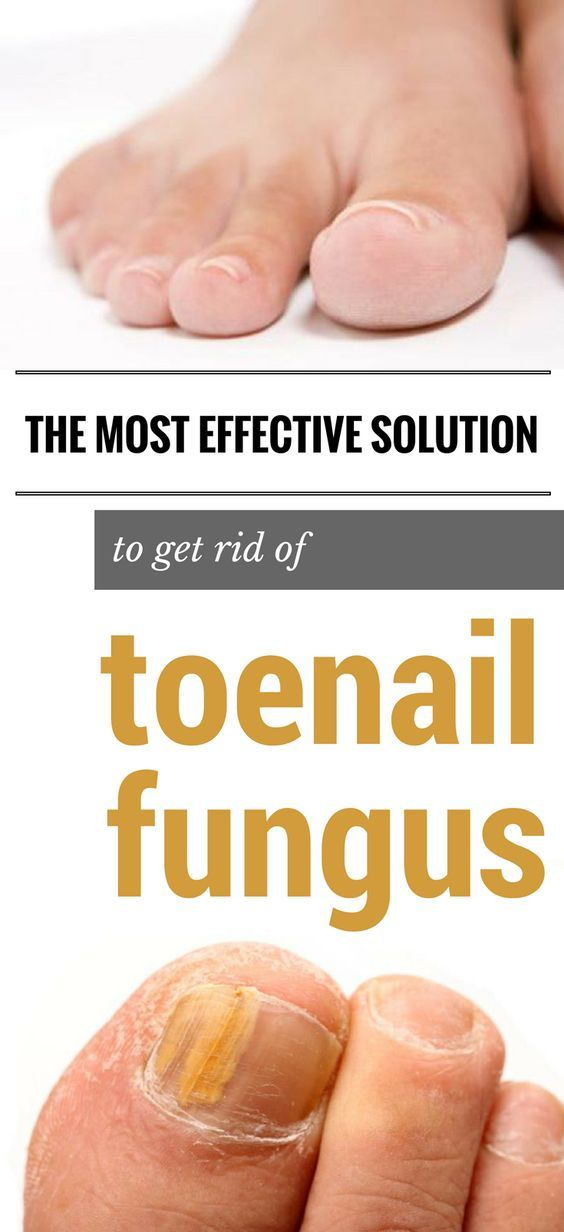 The Most Effective Solution to Get Rid of Toenail Fungus Fast ...