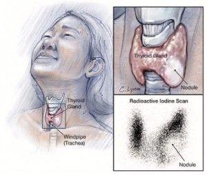 Thyroid nodules – causes, symptoms, treatment