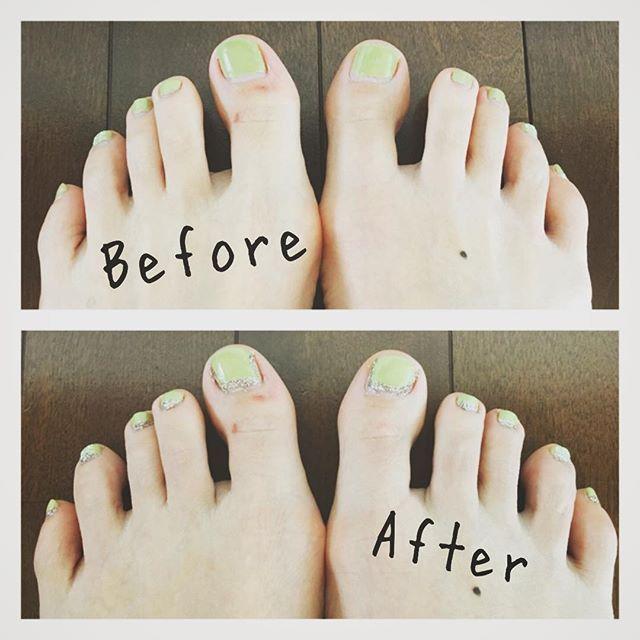 ネイルリペア💅 爪が伸びて来てしまったので生え際に キラキラを足しました✨ コレは除光液でオフしないで済むズボラさん 向けです😅 . 最近足に赤いプツプツが出来て痒くてイヤです😣 周期的にほぼ同じところに出来るので根でもあるのかな… 早く治るといいな。 . . #ペディキュア#ネイル#ネイルリペア#セルフネイル