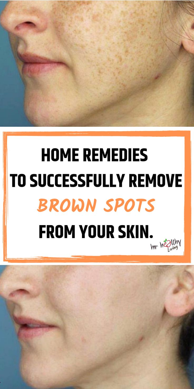 Home remedies to successfully remove brown spots from your