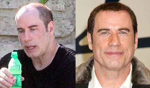 John Travolta Wig And Bald
