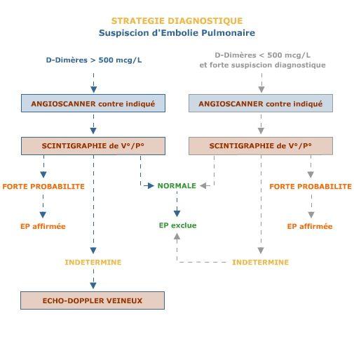 Embolie pulmonaire - Urgences-Online