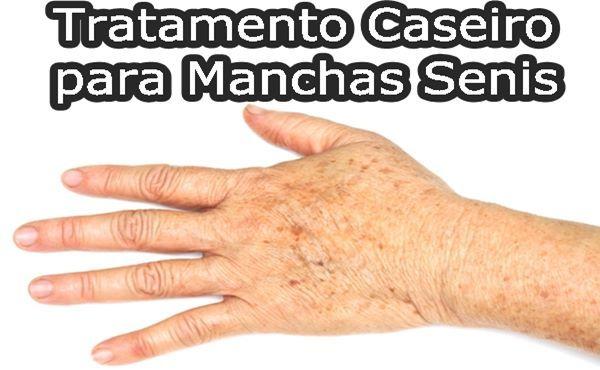 MANCHAS SENIS TRATAMENTO CASEIRO - Como Tratar , O... http://www.aprendizdecabeleireira.com/2016/02/manchas-senis-tratamento-caseiro-como.html