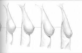 Myths about causes of breast sagging including the myth that breast feeding causes sagging are debunked. learn more.