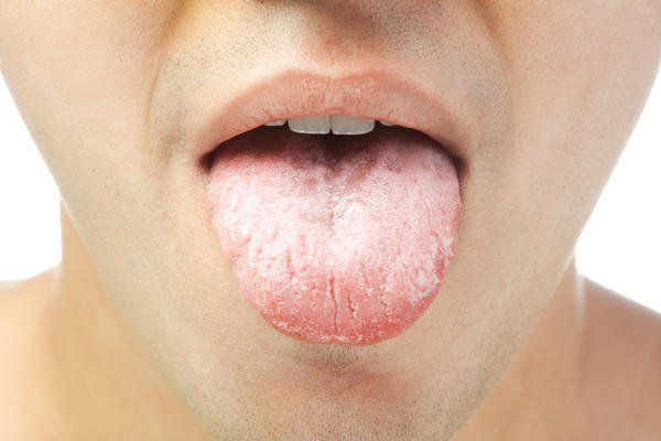 Home Remedies for a White Coated Tongue    The tongue is one of the strongest muscles in the body. It helps us taste food, swallow and talk. A healthy tongue is pink in color and covered with small nodules called papillae. But at times, your tongue may have a white coating. This is a common problem and can lead to symptoms like bad [...]
