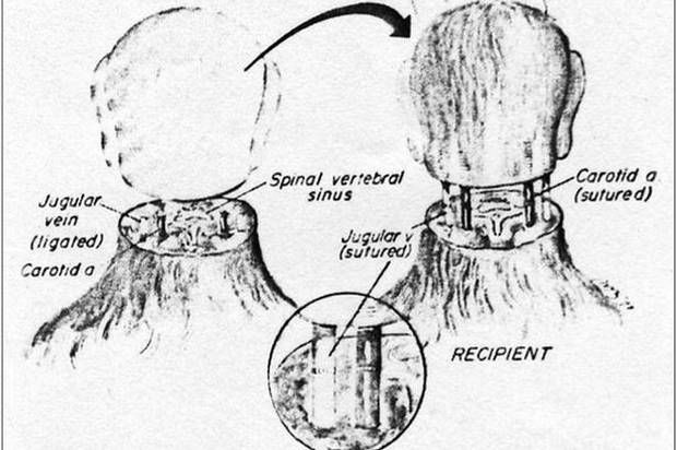 Man undergoing head transplant could experience something 'a lot worse than death', says neurological expert - Science - News - The Independent