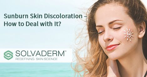 Sunburn Skin Discoloration – How to Deal with It? #sunburn #skincare
