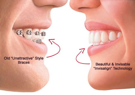Orthodontics can straighten your teeth so you have a ...