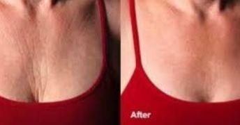 Le rughe sul collo e decolletè rivelano la nostra età e sono difficili da nascondere. Impara a prevenirle con questi due rimedi fai-da-te, totalmente naturali