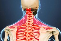 Cervical stenosis with myelopathy is a degenerative condition that pinches the spinal cord. Learn about cervical stenosis symptoms, treatments and surgery.