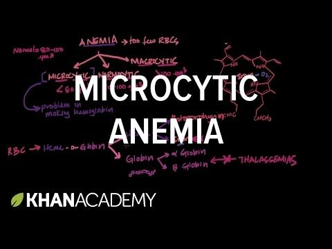 Microcytic anemia | Iron deficiency anemia and anemia of chronic disease | Khan Academy