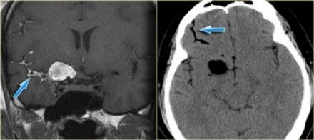 """Classic Ruptured Dermoid Cyst (T1W + NECT):   On MR, fat has a high signal intensity on both T1 and T2.   Fat suppression can differentiate fat from subacute hematoma, melanin, slow flow etc.  high signal on T1WI-- always look for CHEMICAL SHIFT ARTIFACT as this indicates the presence of fat.  -Chemical shift artifact occurs as """"alternating bands of high and low signal on the boundaries of a lesion"""" and is seen ONLY in the FREQUENCY encoding direction.   DDx Fat: 1. Dermoid 2. Teratoma 3…"""