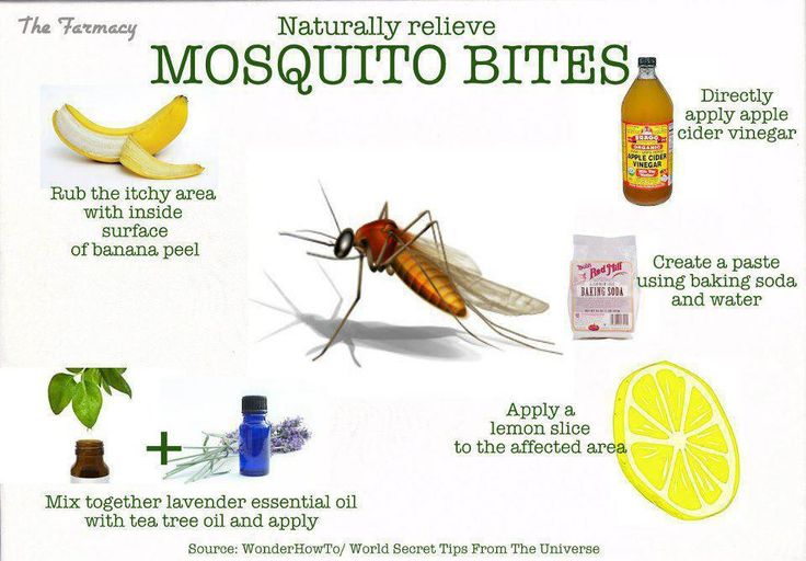 How to treat mosquito bites