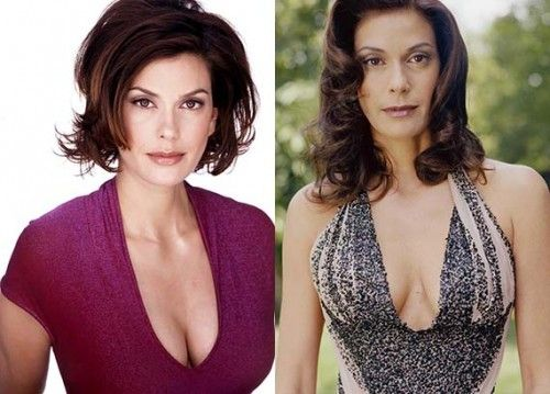 Teri Hatcher Plastic Surgery 500x359 Teri Hatcher Plastic Surgery Breast Before and After Photos