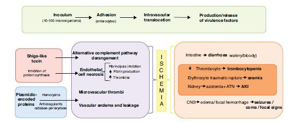 Medicina Intensiva - Brote de E. coli O104:H4 y síndrome hemolítico-urémico